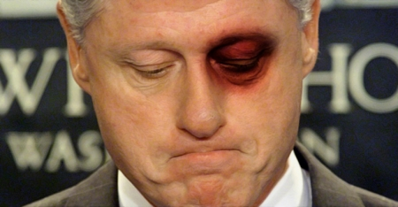 bill-clinton-blackeye