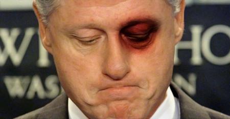 bill-clinton-blackeye
